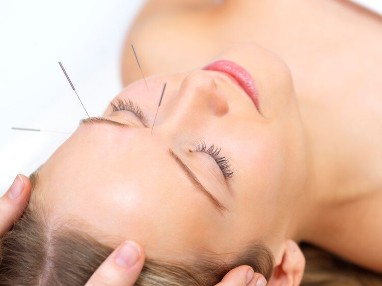 Finding Quality Acupuncture in Brentwood, TN
