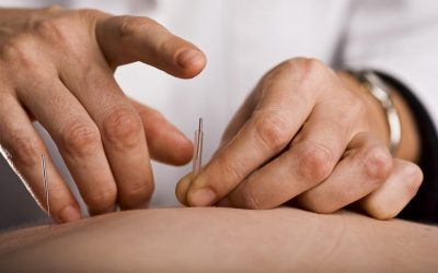 Acupuncture and Herbs Outperform Drug Therapy for IBS